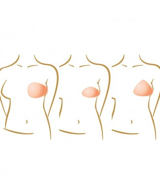 Prótesis de mama parciales - Ref: Balance